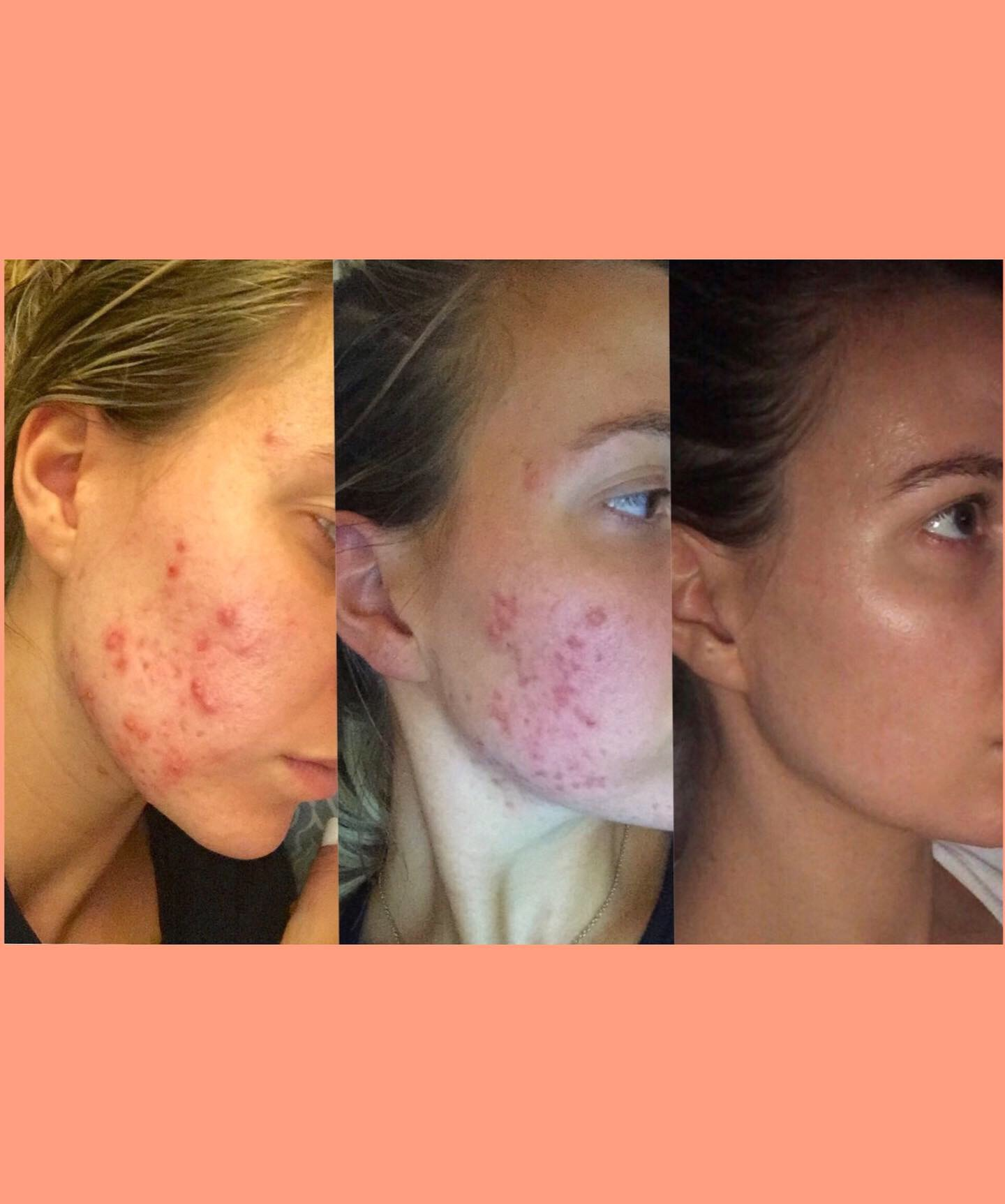 How I Cleared My Cystic Acne Vibrant Pure